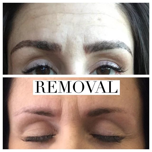 Microblading Removal Before and After - 3D BROWS ACADEMY, Utah