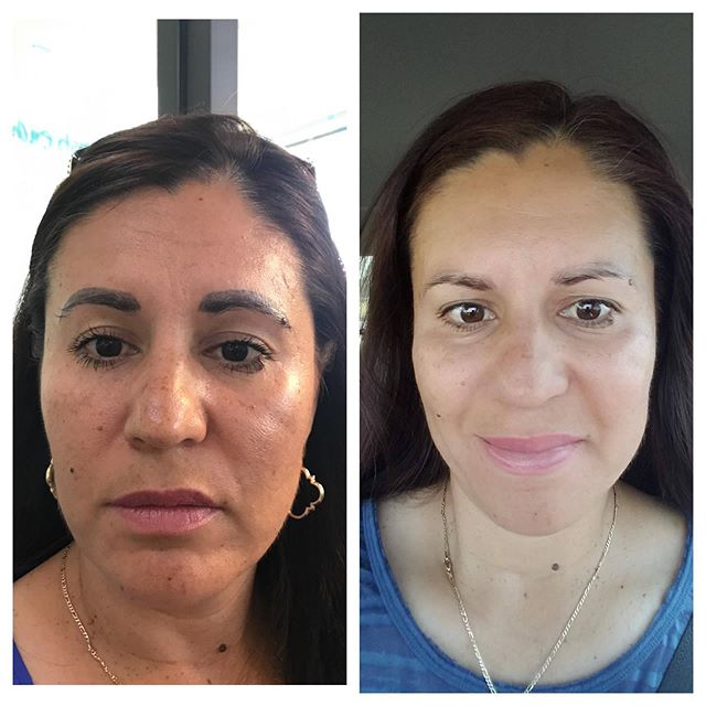 Permanent Makeup Removal Before and After - 3D BROWS ACADEMY, Utah