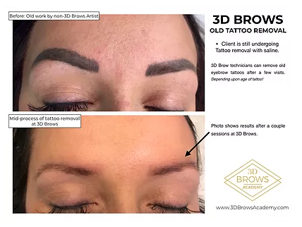 Permanent Makeup Tattoo Removal Before and After - 3D BROWS ACADEMY, Utah