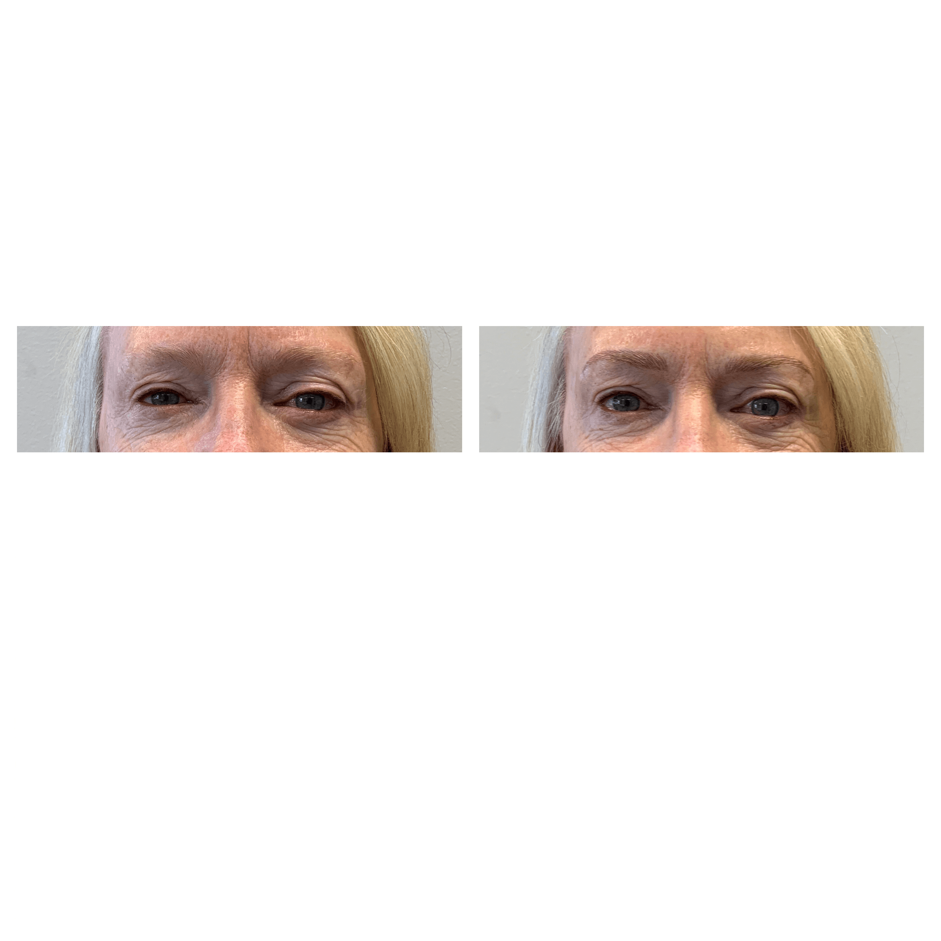 microblading before & after photo, Utah microblading service